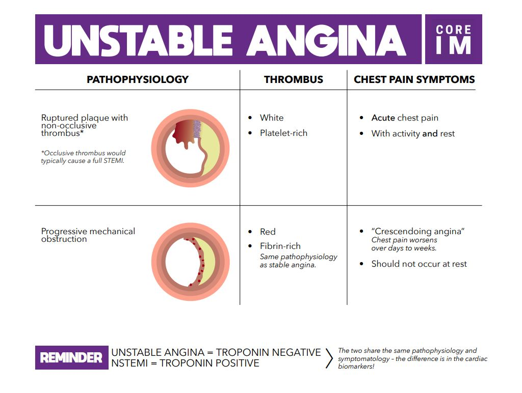 Unstable Angina   Core IM Podcast